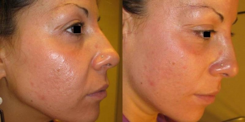 needling-natural-collagen-induction-donna-anni-33-id-1021