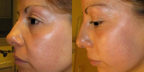needling-natural-collagen-induction-donna-anni-33-id-569