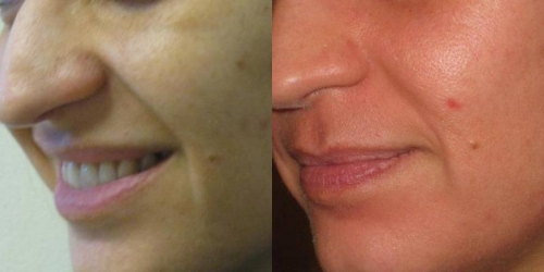 needling-natural-collagen-induction-donna-anni-36-id-1029