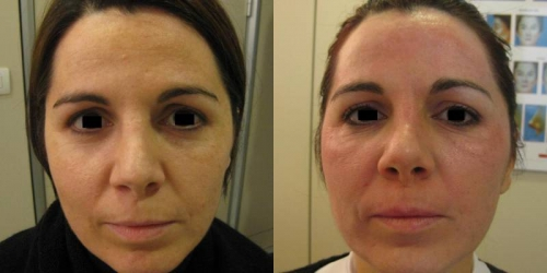 needling-natural-collagen-induction-donna-anni-37-id-1019