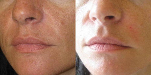 needling-natural-collagen-induction-donna-anni-41-id-1018