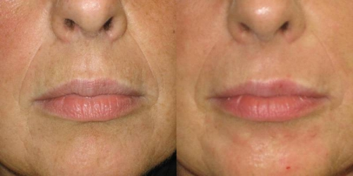 needling-natural-collagen-induction-donna-anni-47-id-570