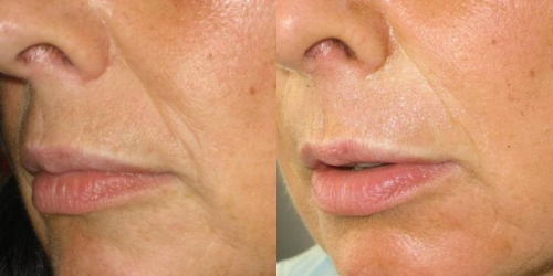 needling-natural-collagen-induction-donna-anni-47-id-571