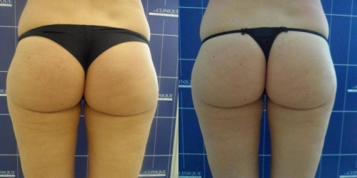 smoothshapes-donna-anni-43-id-2496