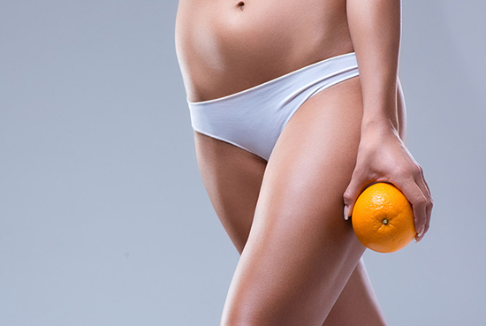 radiofrequenza per la cellulite