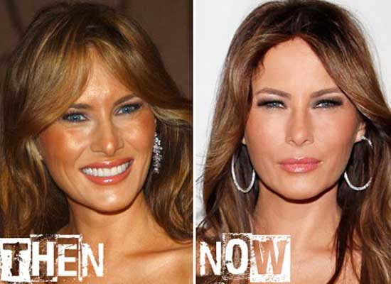 Melania Trump Makeover